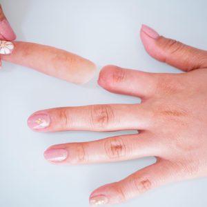 エピテみやびの指エピテーゼ